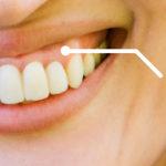 笑うと歯茎が出るガミースマイルは歯科矯正で改善する?上の歯を押し込む治し方