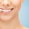 私が30代になってから歯科矯正を始めた5つの理由